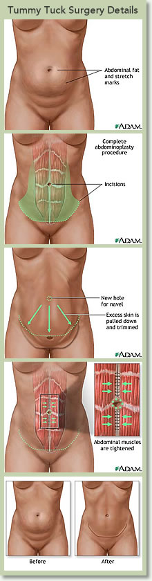 Tummy Tuck Surgery Details